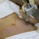 Лазерное удаление растяжек на теле