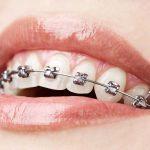 «Dent Family» — быстрое и безболезненное исправление прикуса